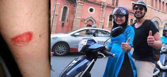 Accident de moto ou de scooter au vietnam : risque d'hospitalisation : nécessité d'avoir une assurance santé expat